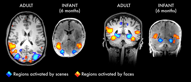 Adult and Child Brain Scans